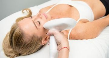 Picture of Micro Needling Rejuvenation 4 treatments – Perth